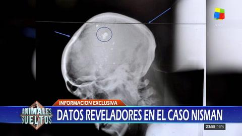 La verdad de la bala que mató a Nisman