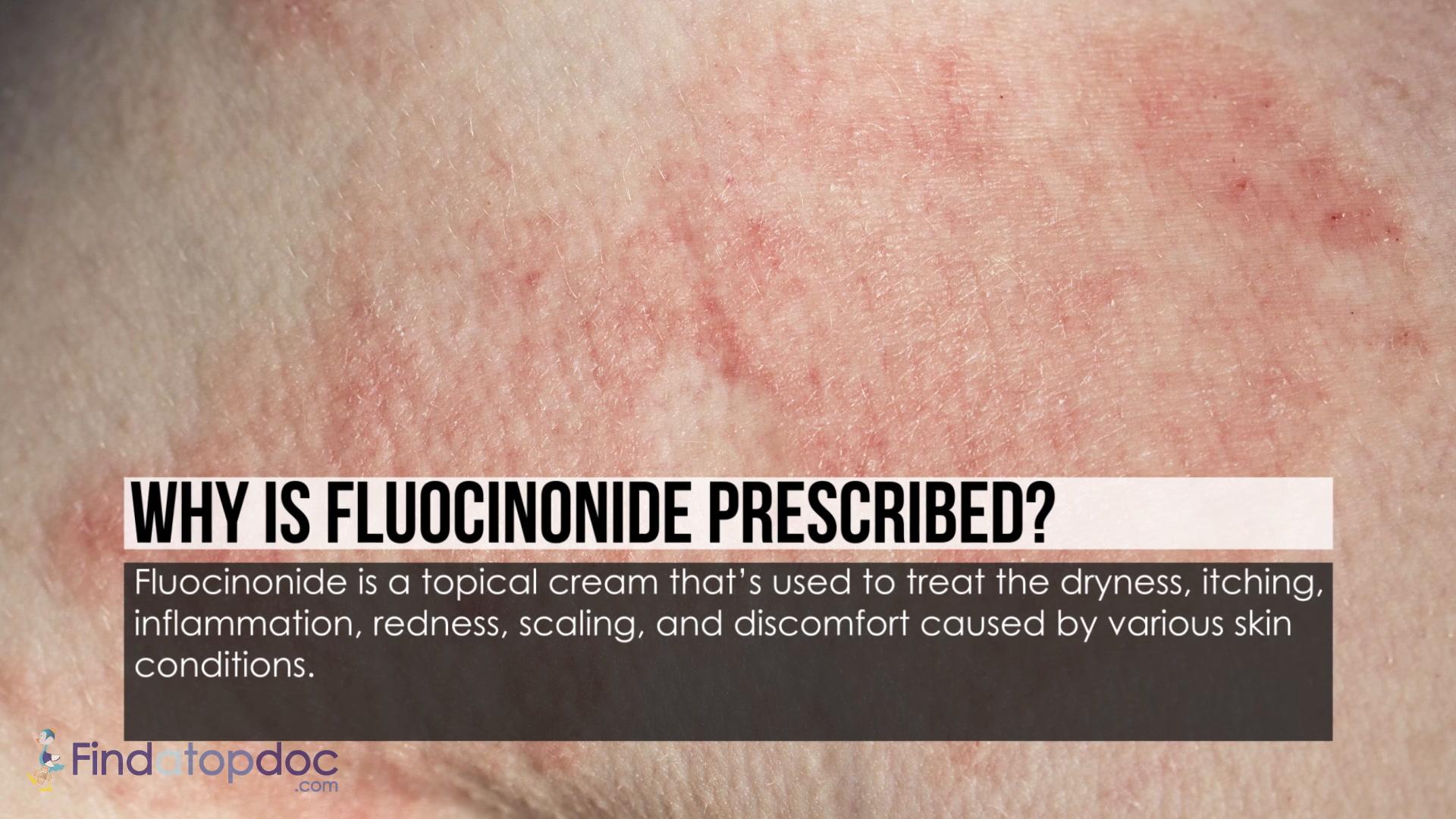 Fluocinonide advise
