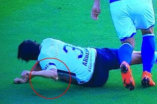 Espeluznante lesión de Alejandro Arribas, defensa de Pumas