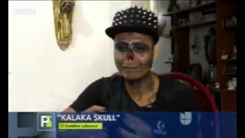 Colombiano se cortó la nariz, las orejas y la lengua para parecerse a una calavera