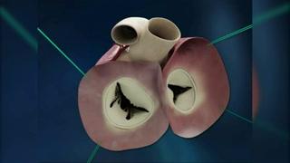 Exitoso: Anuncian primer implante de corazón artificial