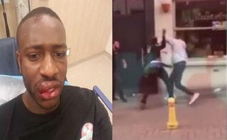 Jugador del City involucrado en tremenda paliza a un joven en Inglaterra