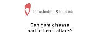 Can gum disease lead to heart attack?