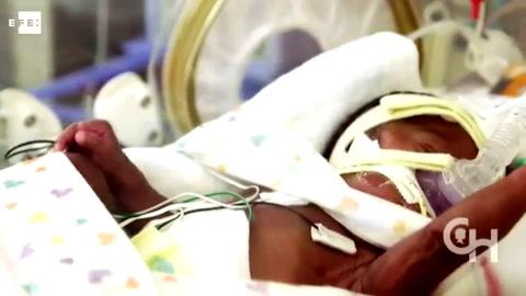 Un útero artificial mantiene con vida a fetos de animales prematuros