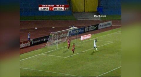 Lo que se perdió Roger Rojas ante el Santos (Liga Concacaf 2017)