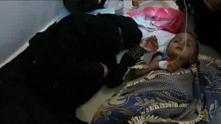 Yemen sufre la mayor crisis humanitaria del mundo: ONU