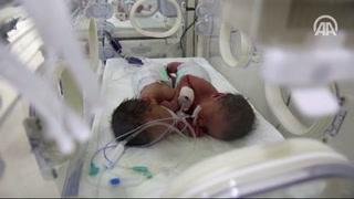 İkiz bebekler görenleri şaşırttı