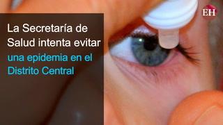 Epidemia: Tegucigalpa reporta 1,800 casos de conjuntivitis