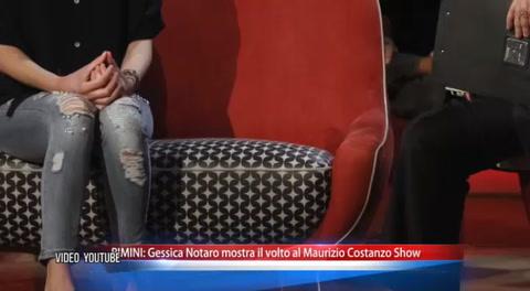 Gessica Notaro: Modelo italiana desfigurada con ácido decidió mostrar su rostro