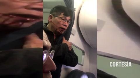 Nuevo video muestra a pasajero sacado a la fuerza de un avión, sangrando