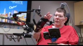 Con neuroprótesis, un tetrapléjico mueve brazos y manos