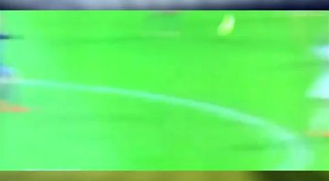 La lesión de Kylian Mbappé an el Lyon