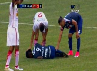 La terrible lesión de Rubilio Castillo