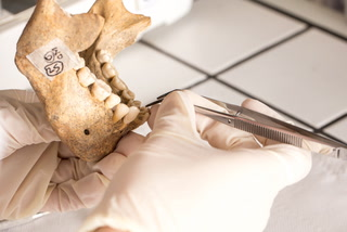 Forensic Odontology - Piecing Together The Puzzle