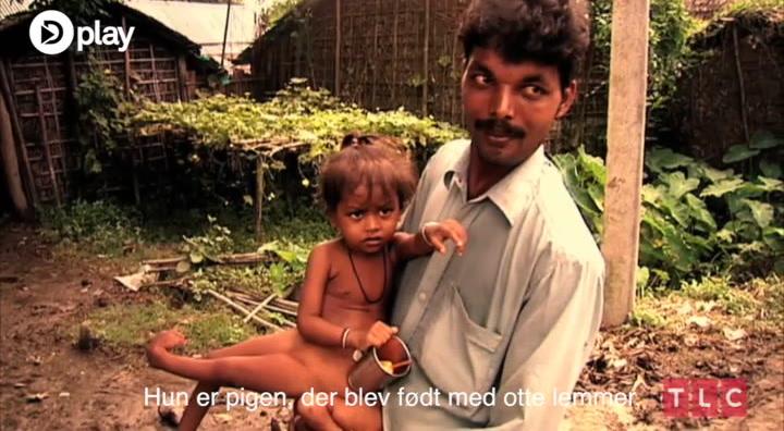 Mirakel eller misfoster? Pige har gudestatus i Indien