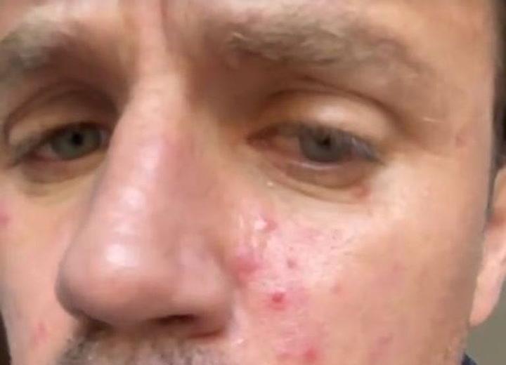Dani Martín conciencia a sus seguidores sobre la afección de la rosácea
