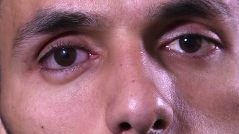 Una bala en el ojo: el