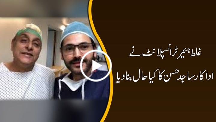 Actor Sajid Hasan's hair transplant goes wrong