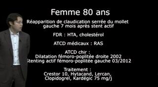eStaff Zilver PTX : Cas clinique 4
