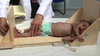 1 de cada 3 niños pequeños sufre desnutrición o sobrepeso en el mundo