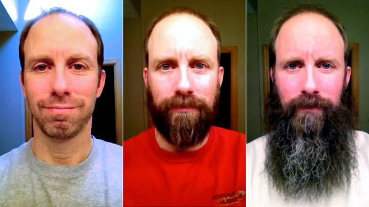 5 grunner til at menn bør ha skjegg