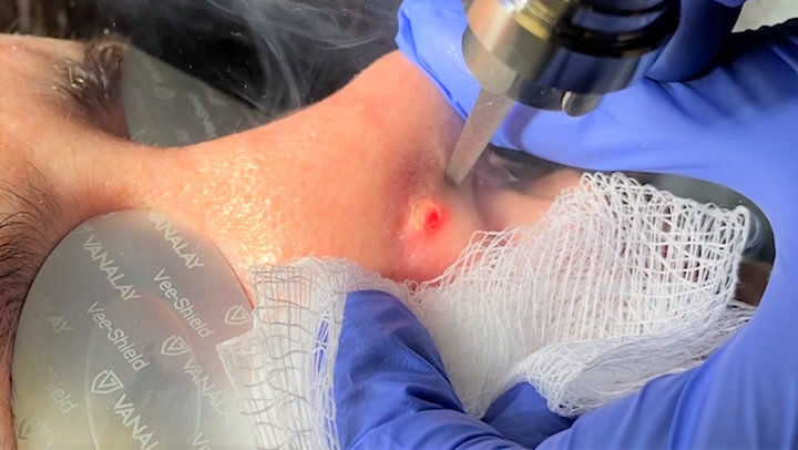 This laser treatment can instantly remove unwanted moles
