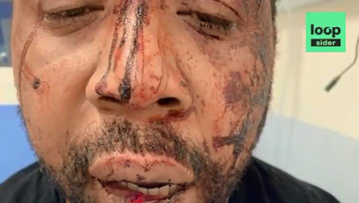 Griezmann condena la violencia racista de la policía en Francia