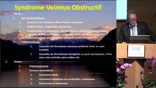 Pathologie endoveineuse profonde : Prise en charge par le chirurgien vasculaire