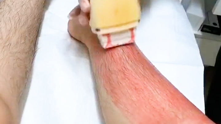 Roll-on wax painlessly removes body hair