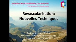 Revascularisation : les nouvelles techniques