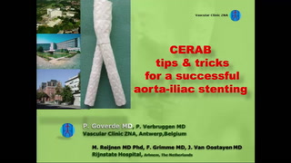 CERAB tips and tricks for a successful aorta stenting