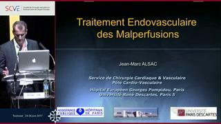 Traitements endovasculaires des malperfusions et adjuvants dans le suivi