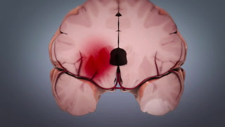 Shakeel Chowdhry, MD, discusses the difference between ischemic stroke and hemmoragic stroke and covers surgical and endovascular treatment options.