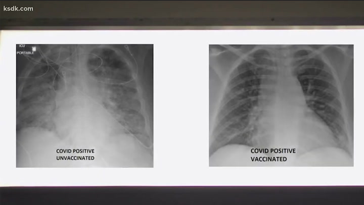 Lung X-rays show stark difference Covid has on vaccinated people