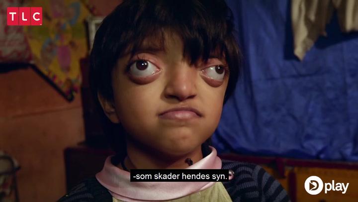 8-årig piges øjne falder ud: Forældrene troede det var normalt