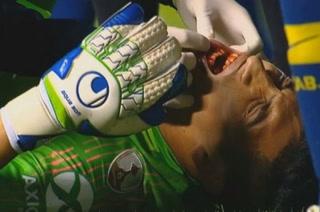 VIDEO: La espeluznante lesión de Esteban Andrada, portero de Boca Junior