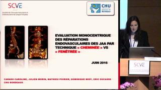 Evaluation monocentrique des réparations endovasculaires des anévrismes de l
