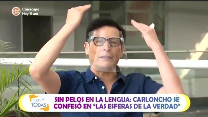 "Carloncho habla de sus 'retoquitos': ""Me hice el reacomodo de pelo"""