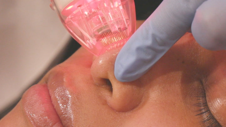 How a radio-frequency microneedling machine reduces hyperpigmentation
