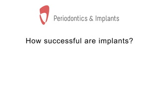How Successful Are Implants?