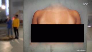 NRKs sexopplæring sensurert av Youtube