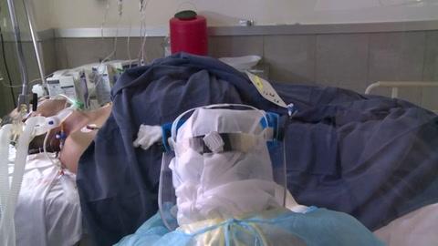 OPS alerta de hospitales peligrosamente llenos y riesgo para jóvenes por covid-19