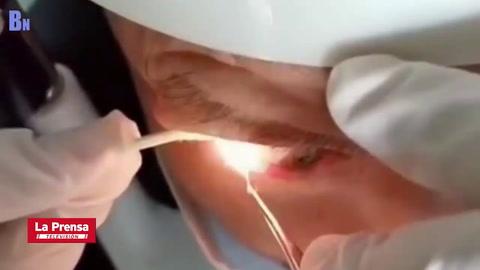 Extraen 20 gusanos del ojo de un hombre en China