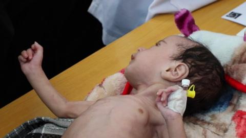 Uno de cada tres niños pequeños sufre desnutrición o sobrepeso en el mundo