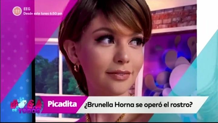 Brunella Horna niega haberse hecho cirugías en el rostro