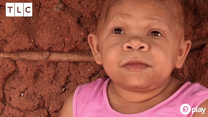 Chokerende! Kvinde har levet som en baby i 31 år