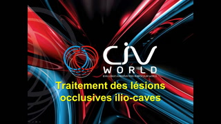 Angioplastie-stenting des lésions occlusives veineuses ilio-caves
