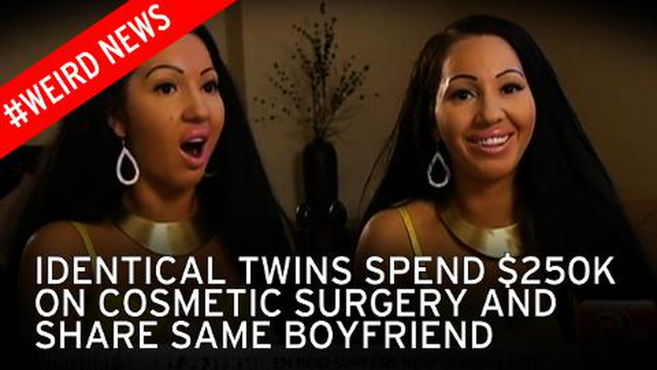 Most twins worlds surgery identical before Aussie sisters