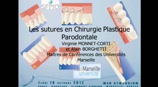 Les sutures en chirurgie plastique parodontale