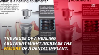 UNLV will not release audit of dentist reusing used single-use implant pieces